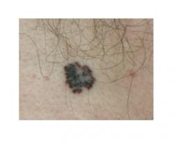 Odos vėžio nuotraukos