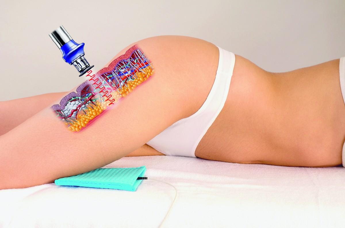 Лазерная процедура похудения