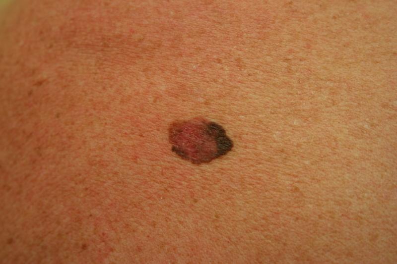 меланома фото-ის სურათის შედეგი