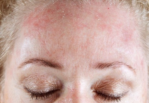 Dermatitas ant veido