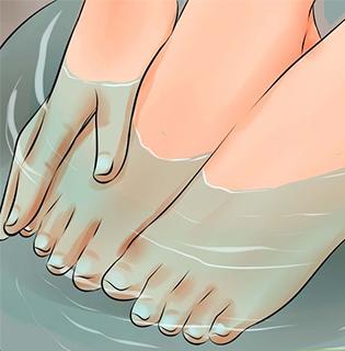 Kaip gydyti įaugusius kojų nagus namuose