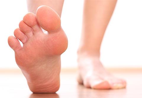 Kojų prakaitavimas