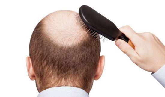 Kodėl slenka plaukai vyrams