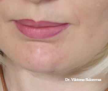 Odos raukšlių korekcija hialuroninės rūgšties užpildais