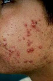 Acne – tai odos riebalų liaukos ir viršutinės plauko folikulo dalies lėtinis uždegimas
